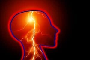 שיקום מכאב טריגי'מינל נוירלגיה