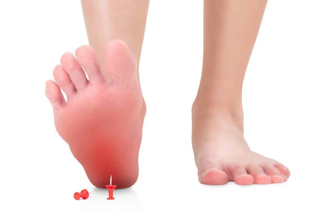 כף רגל כואבת דורכת על נעץ אדום