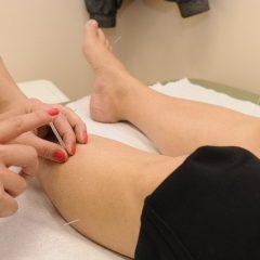 אקופונקטורה מסייעת משמעותית לכאבי ברכיים
